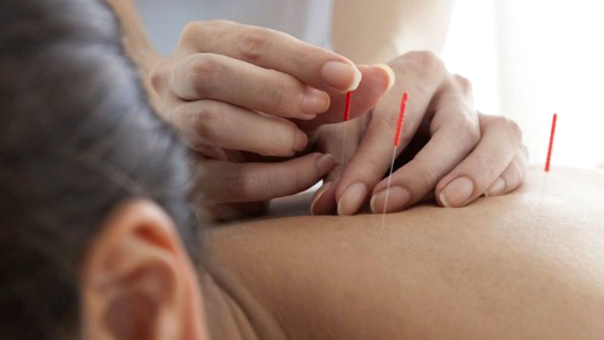 Tarek William Saab - beneficios de la acupuntura